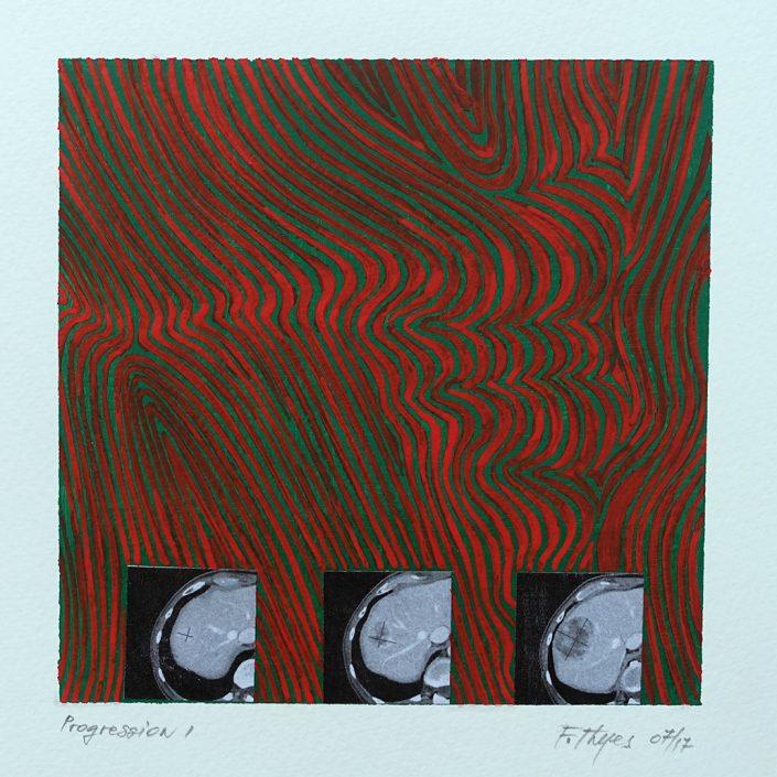 Felix Thyes, Progression, 2017, 16x16 auf 20x20, Acryl, Collage