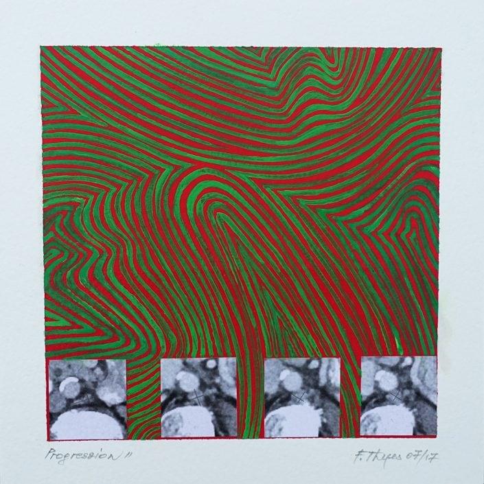 Felix Thyes, Progression 2, 2017, 16x16 auf 20x20, Acryl, Collage
